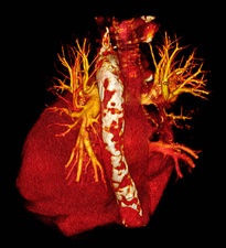 CT scan of heart with calcific aorta