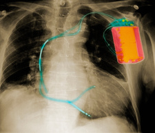 X-ray of chest with defibrillator