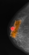 Mammogram with colloid carcinoma