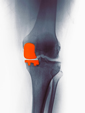 Knee X-ray, partial knee replacement