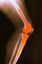 X-ray, total knee replacement