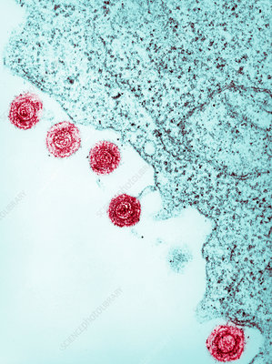 Electron micrograph of human herpes virus-6, HHV-6