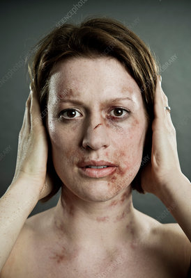Woman with bruises covering her ears