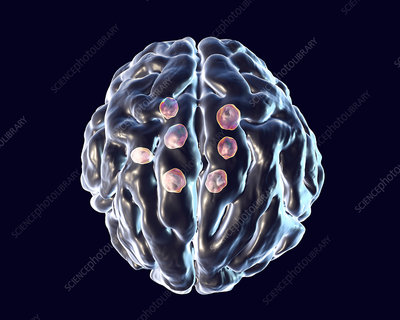 Cryptococcal brain lesions, illustration