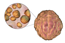 Cryptococcal meningitis, illustration