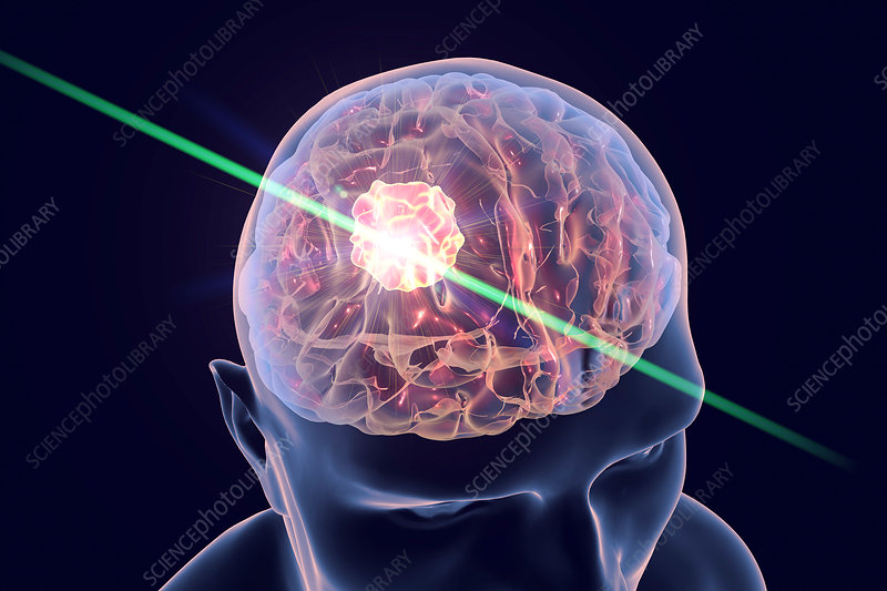 Brain cancer treatment with laser, illustration