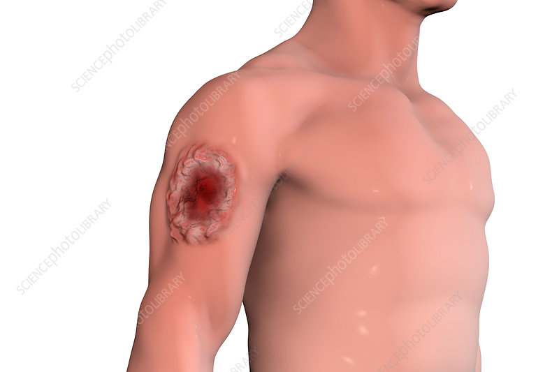 Skin ulcer in leishmaniosis, illustration