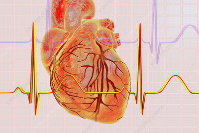 Normal Heartbeat, illustration