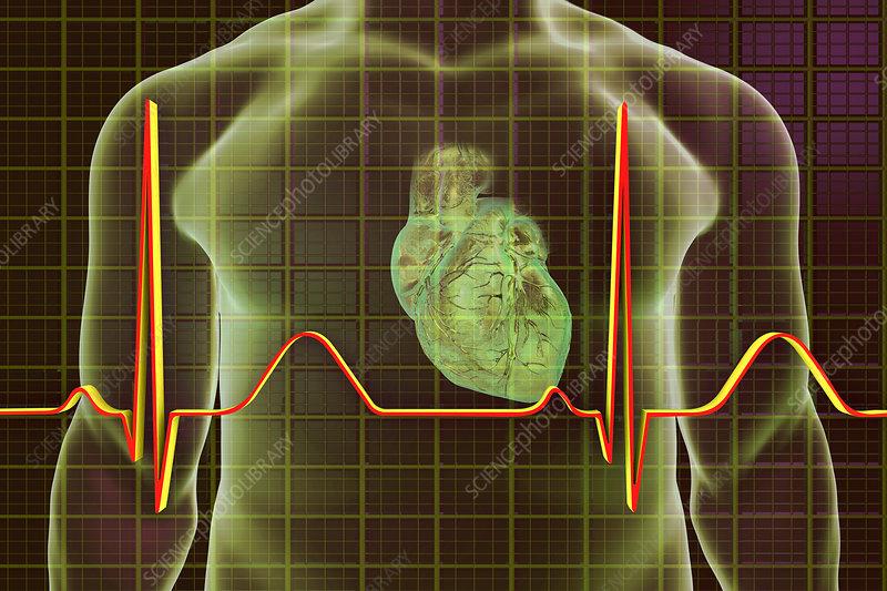Normal Heartbeat, illustration