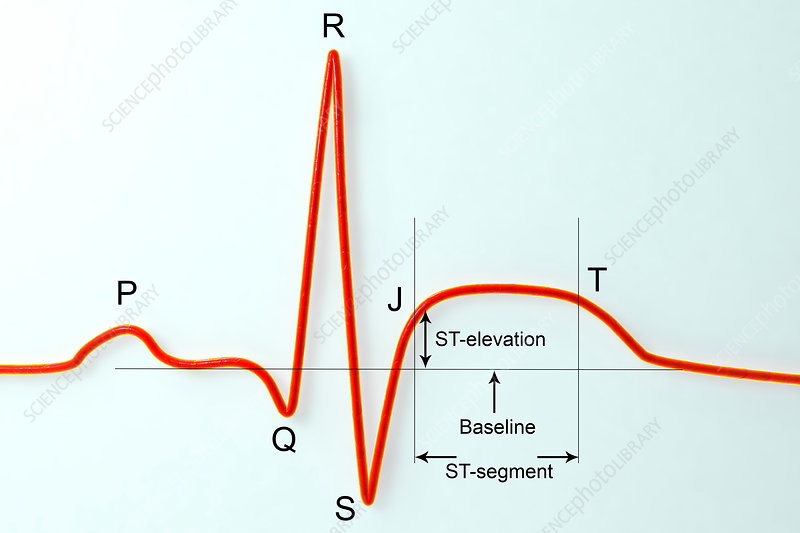 ECG in myocardial infarction, illustration