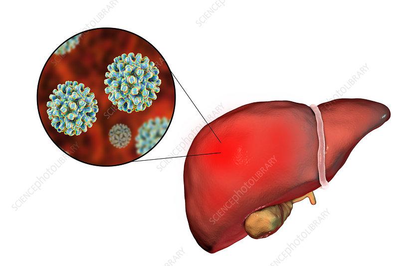 Hepatitis B, illustration