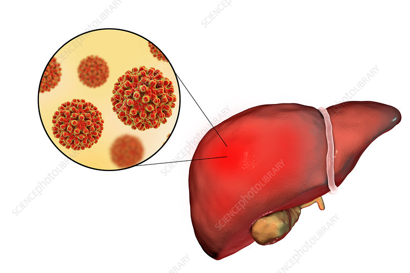 Hepatitis B, illustration