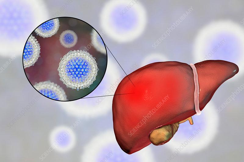 Hepatitis C, illustration