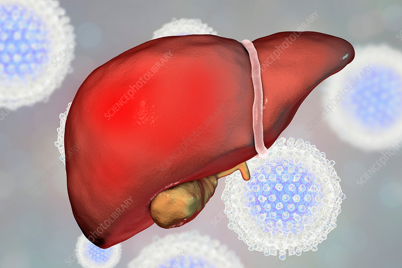 Hepatitis C, illustration