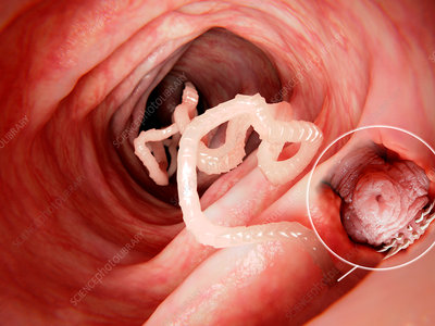 Tapeworm in human intestine, illustration