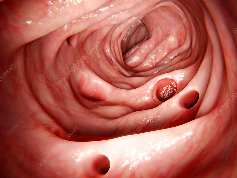Diverticula in the large intestine, illustration
