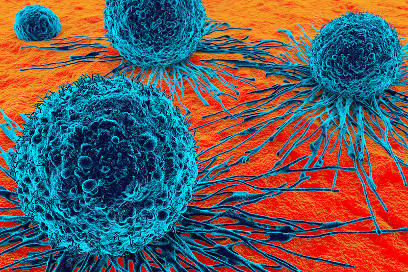 Cancer cells, illustration