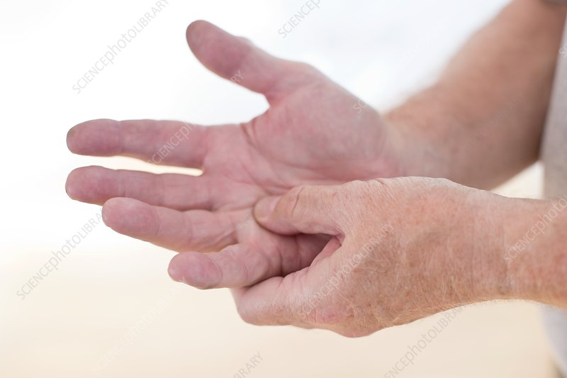 Man rubbing sore hand