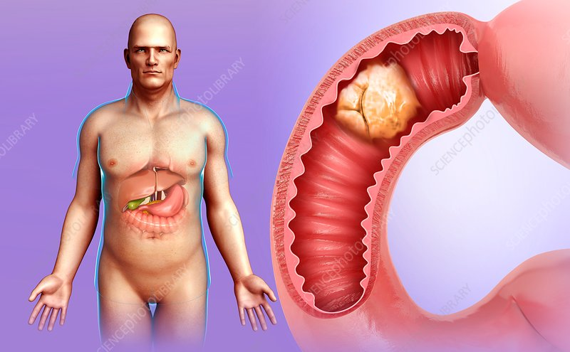 Man with intestinal cancer, illustration