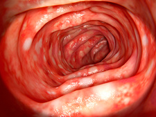 Ulcerative colitis, illustration