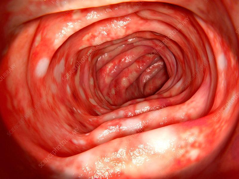 Ulcerative colitis, illustration