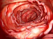 Ulcerative colitis and pseudopolyps, illustration