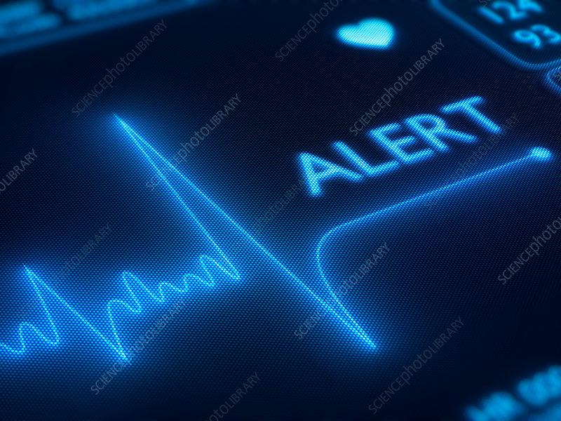Electrocardiograph with an alert sign