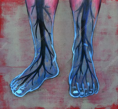 Blue feet of diabetic person, illustration