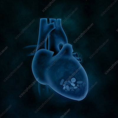 Conceptual illustration of heart issues