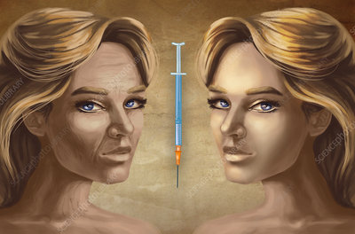 Cosmetic surgery, illustration