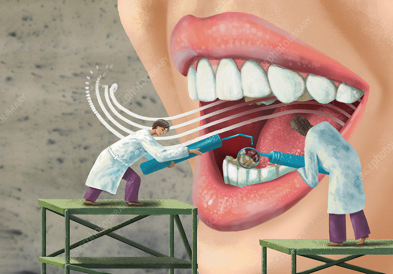 Illustration of dentists examining patient's mouth