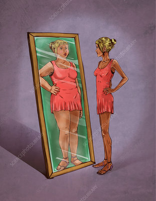 Illustration of eating disorder