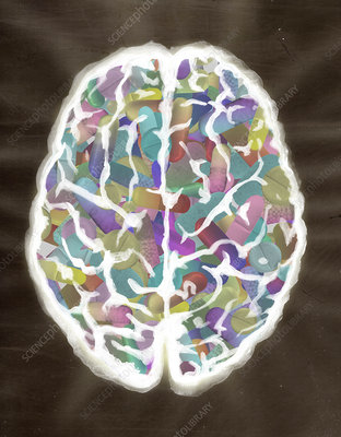 Illustration of human brain filled with capsules