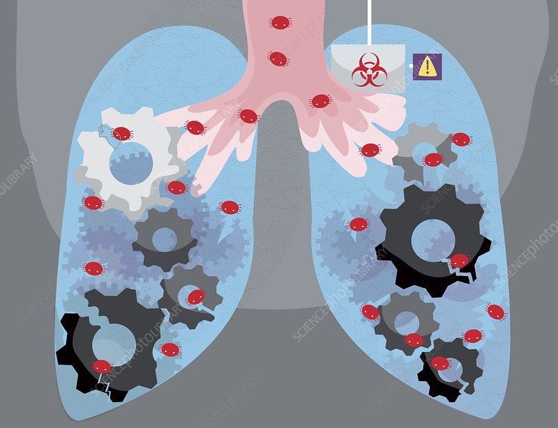 Illustration of human lungs infected by virus