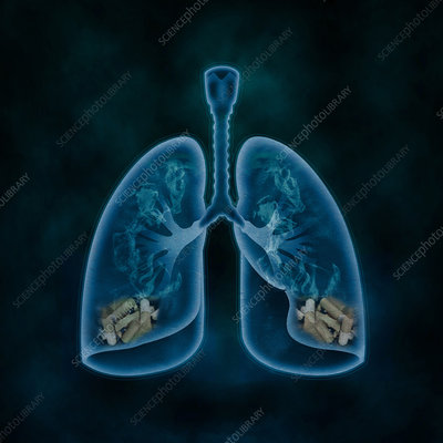 Illustration of lungs filled with cigarettes