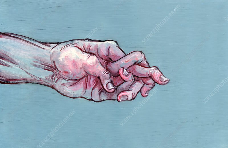 Illustration of man's hand with jumbled fingers