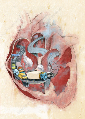 Clogged heart, conceptual illustration