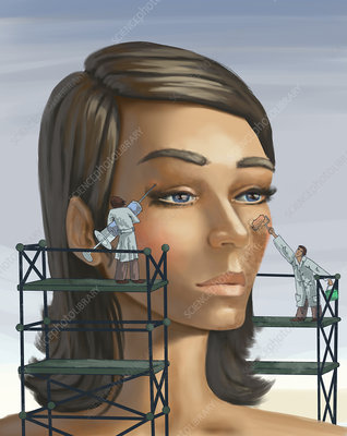Plastic surgery, illustration