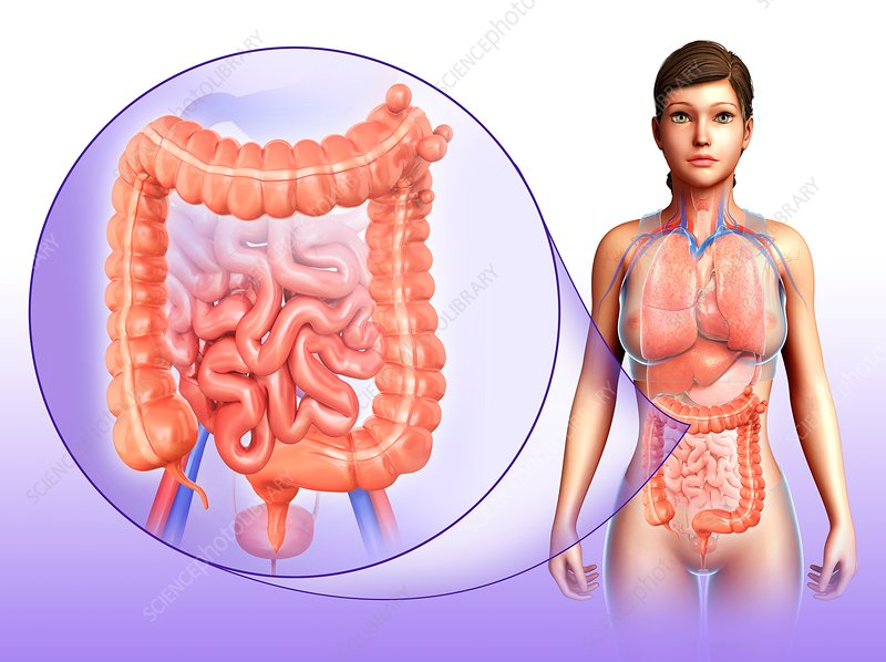 Woman with diverticulosis, illustration