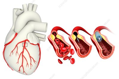 Coronary angioplasty stent insertion, illustration