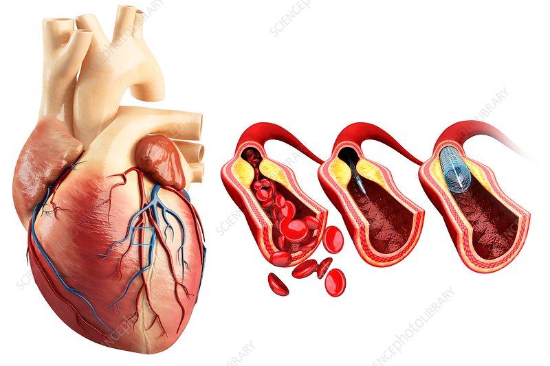 Credit Com Login >> Coronary angioplasty stent insertion, illustration - Stock Image F019/6161 - Science Photo Library