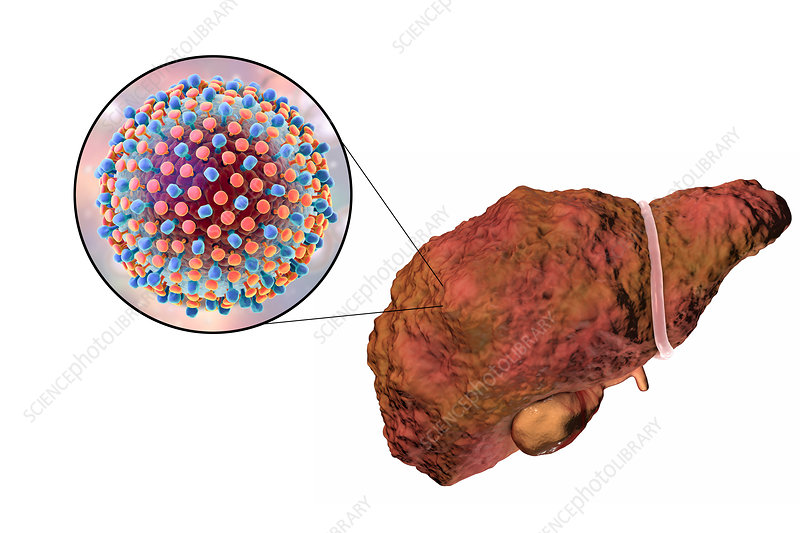 Liver cirrhosis due to Hepatitis C, illustration