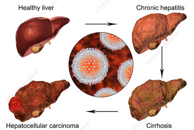 Stages of liver disease in hepatitis C, illustration