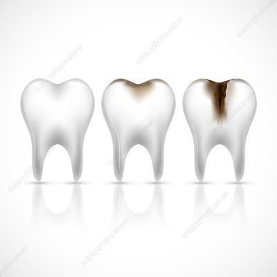 Tooth decay, illustration