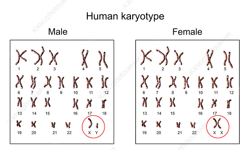 what is the sex chromosome karyotype of a human female in Anaheim