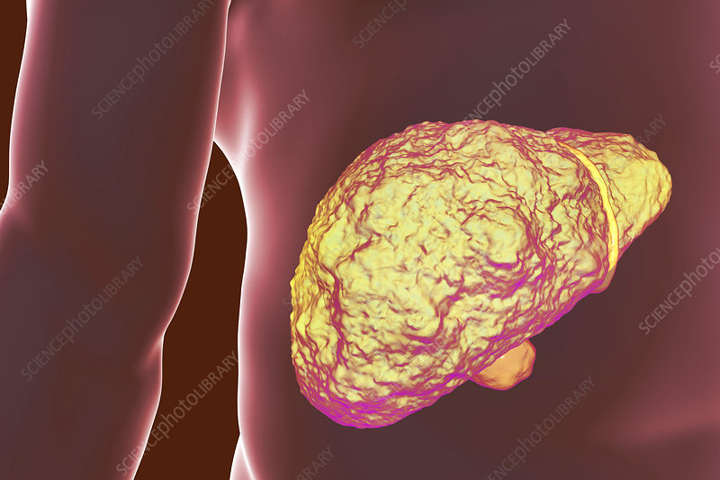 Liver Cirrhosis, illustration