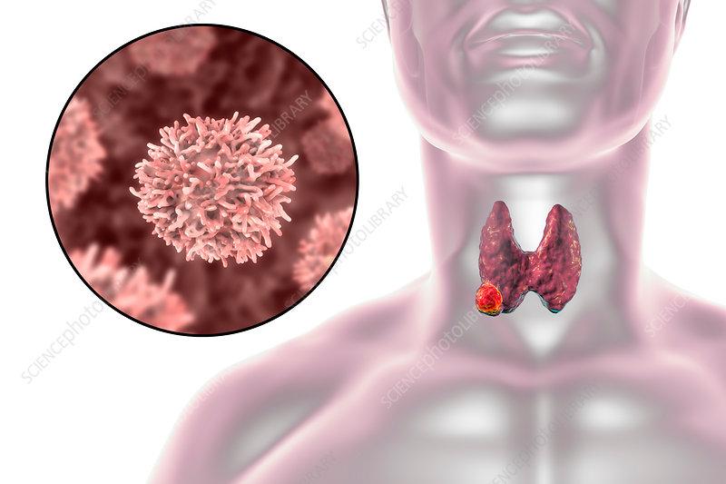 Thyroid gland cancer, illustration
