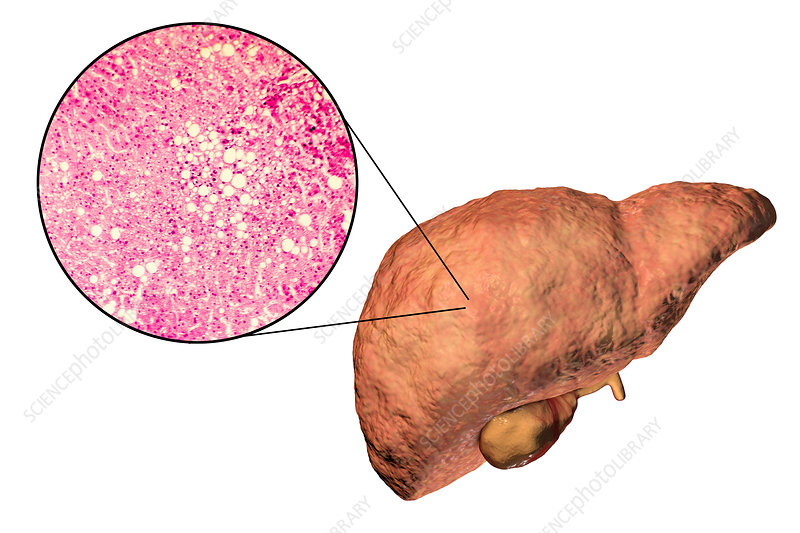 Fatty liver, illustration and micrograph
