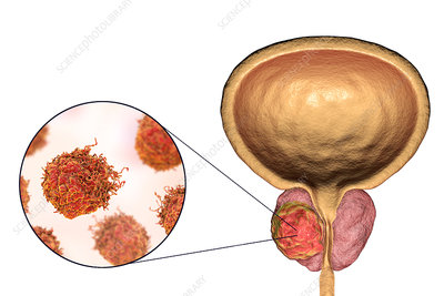 Prostate cancer, illustration