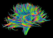 White matter fibres of the human brain, DSI scan